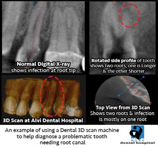 Use of Cone Beam technology in Root Canals - an example of its effective utility