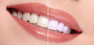 Before After Laser Tooth Whitening