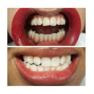 Laser Whitening Alvi Dental