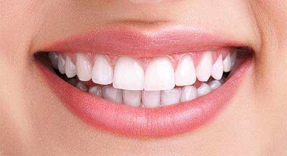 after whitening smile