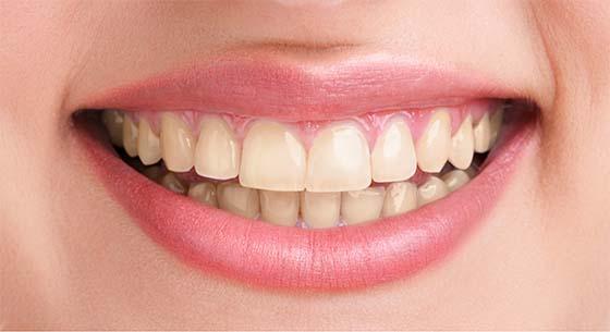before smile slider